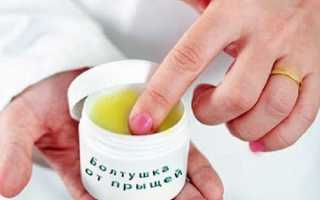 Болтушка от прыщей, эффективные рецепты в домашних условиях, противопоказания