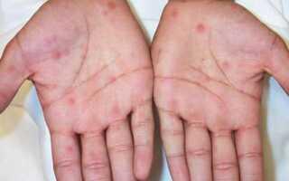 Прыщи на ладонях: причины, симптоматика, признаки