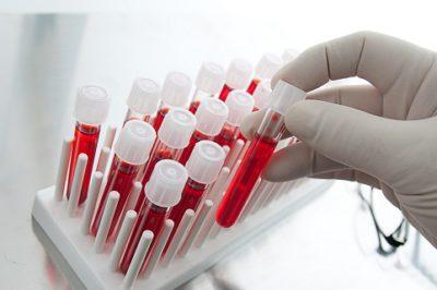 Антибиотики для лечения гидраденита