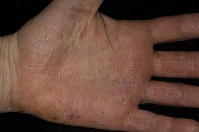 Дисгидротическая экзема кистей рук: лечение народными средствами