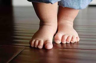 Почему потеют ноги у детей