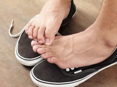 Потеют ноги - причины у взрослого и ребенка. Что делать при гипергидрозе стоп - лечение в домашних условиях