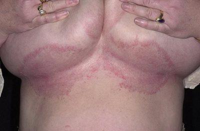 Лечение опрелостей и потницы под молочными железами