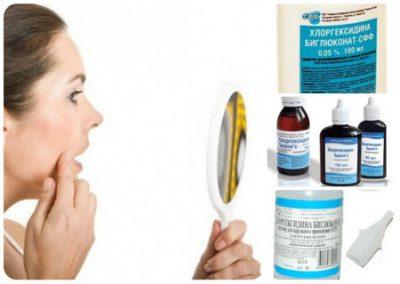 Белые прыщики и сыпь на половых губах: причины и лечение в домашних условиях