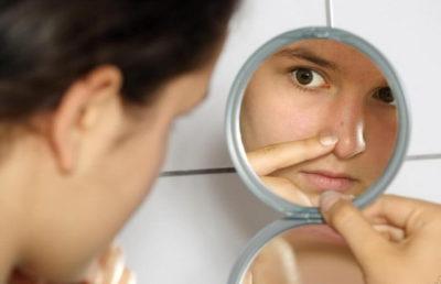 Выдавливание угрей и прыщей на лице: причины, советы и рекомендации как правильно проводить процедуру