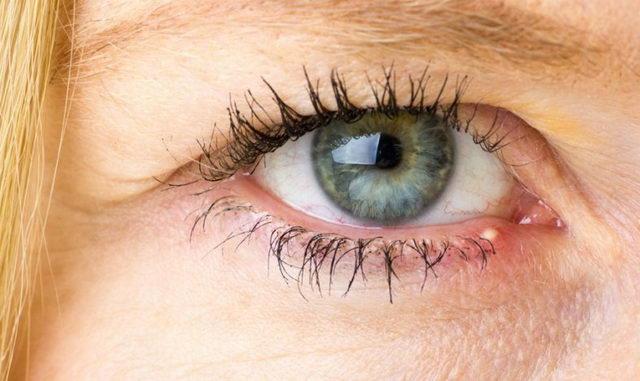 Прыщ на веке глаза, причины появления и способы лечения