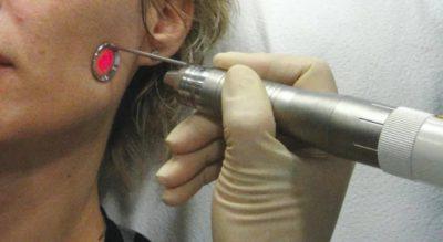 Почему появляются прыщики на висках у женщин: причины и лечение