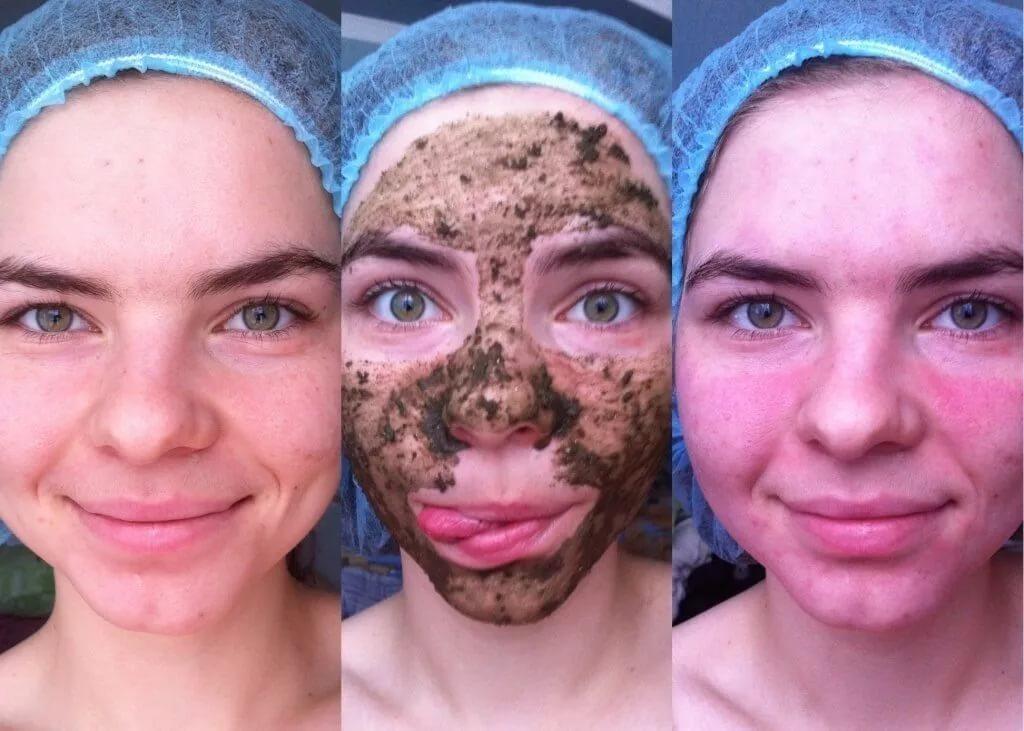 Что делать после маски из бодяги