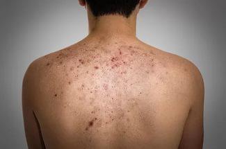 От чего и почему появляются прыщи на спине: методы лечения у взрослых и детей