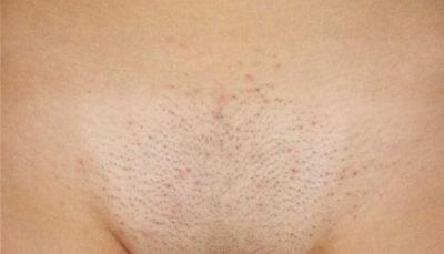 Прыщи на лобковой части: причины и лечение