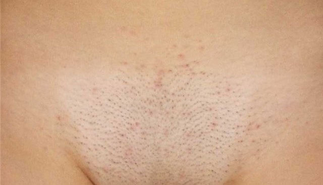 Если чешется кожа на лобковой части