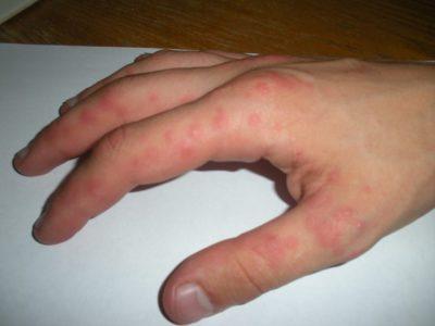 Потница на руках у взрослых: симптомы и лечение в домашних условиях
