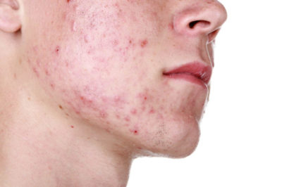 Как избавиться от болючих прыщей на лице