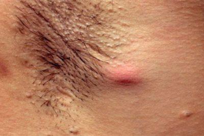 Фурункул под мышкой: причины и лечение в домашних условиях
