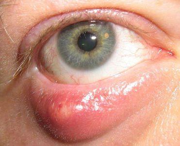 Лечение фурункула в домашних условиях