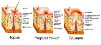 Фурункул в носу: как и чем лечить в домашних условиях
