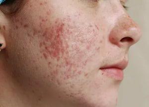 Лечение постакне — поговорим, как убрать рубцы с лица