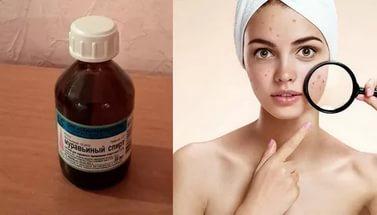 Использование спирта для очищения проблемной кожи