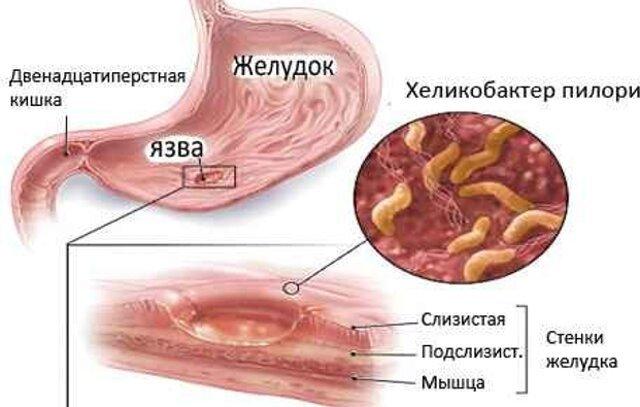 Хеликобактер диета