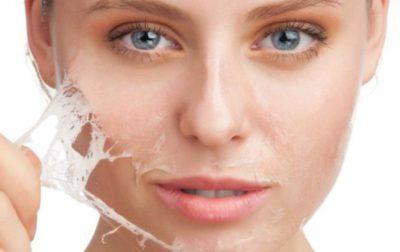 Помогает ли мужская сперма от прыщиков и угрей на лице? Маски и рекомендации к применению