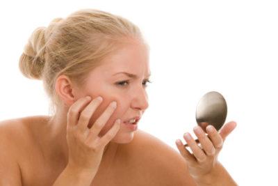 Как лечить демодекоз на лице?