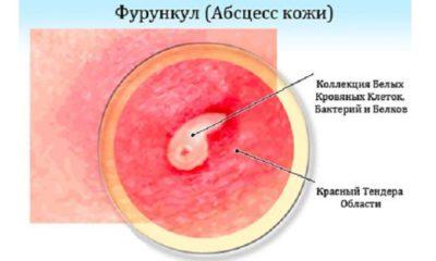 Фурункул (чирей) на шее: причины и методы лечения