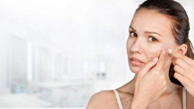 Кистозное акне: причины появления и особенности лечения такого вида фурункулеза
