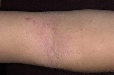Прыщики на коленях и локтях чешутся у ребенка: причины и лечение в домашних условиях