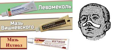 Особенности применения Левомеколя при фурункулах