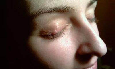 Какой врач лечит угри на лице и спине?