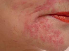 Аллергические прыщики - как избавиться?