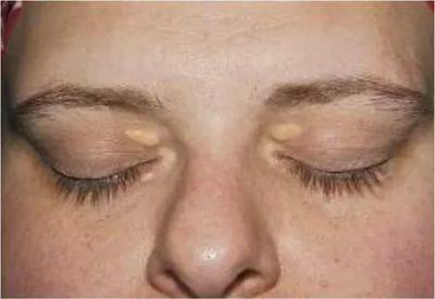 Жировые прыщи на коже лица: как избавиться в домашних условиях?