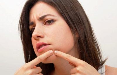 Как избавиться от простудных прыщей на лице?